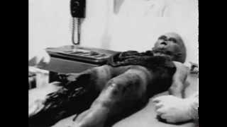 Roswell UFO Crash - Alien Autopsy (1947)