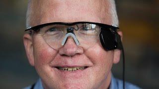Bionic eye helps blind man see again after 33 years