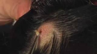 Larva Removed From a Girl's Head